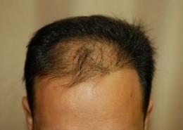 השתלת שיער לגברים - לפני