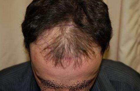 השתלת שיער לגברים - לפני ההשתלה מקדימה