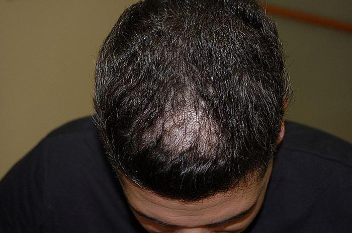 לפני השימוש בטופיק - נשירת שיער שיער דליל