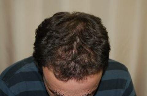 השתלת שיער לגברים - לאחר השתלה מקדימה