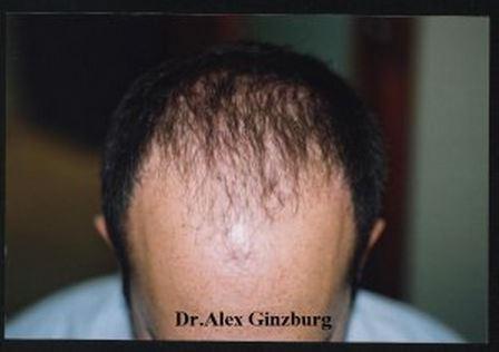השתלת שיער לגברים - לפני השתלה מקדימה