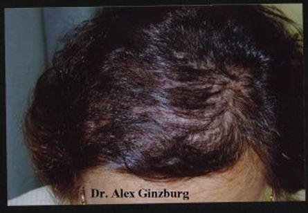 השתלת שיער לנשים - לאחר השתלת שיער