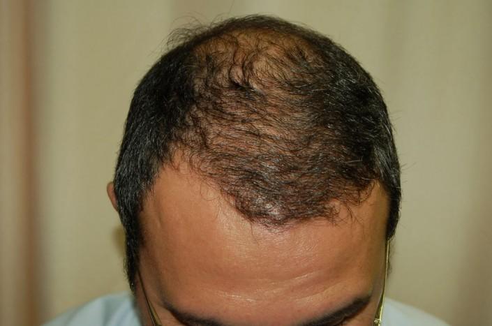 השתלת שיער לגברים - אחרי ההשתלה מקדימה