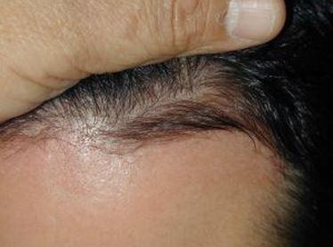 לאחר השימוש בפרופסיה - נשירת שיער