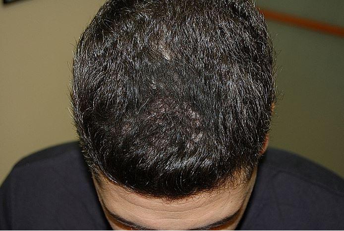 לאחר השימוש בטופיק - נשירת שיער שיער דליל