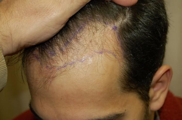 השתלת שיער לגברים - לפני ההשתלה במפרצים