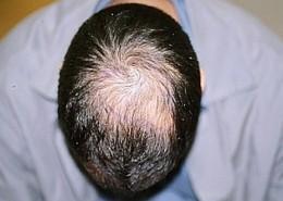 השתלת שיער לגברים - לפני השתלה בפדחת