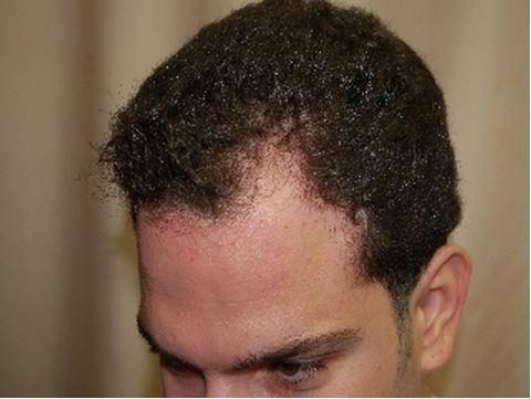 השתלת שיער לגברים - לפני השתלה במפרצים