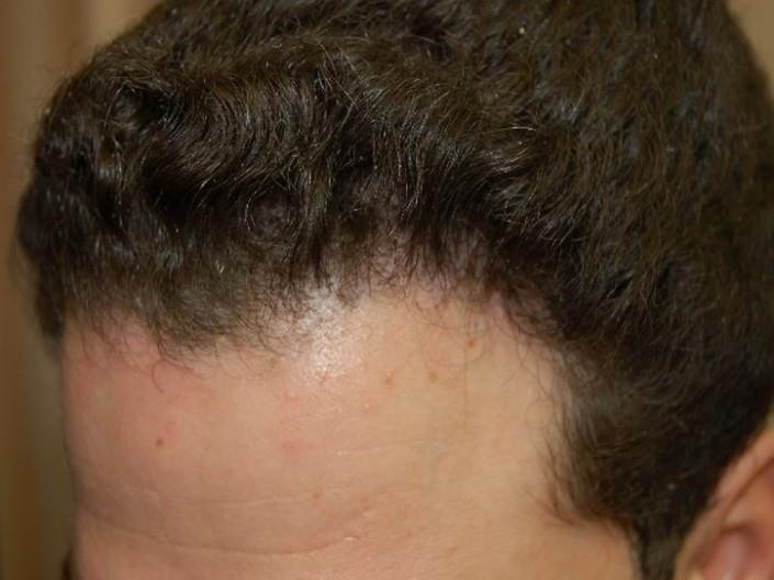 השתלת שיער לגברים - אחרי השתלה במפרצים