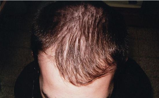 לפני השימוש בפרופסיה - נשירת שיער