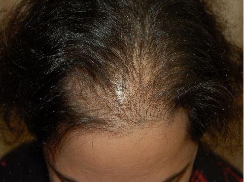 השתלת שיער לנשים - התקרחות נשית - לפני