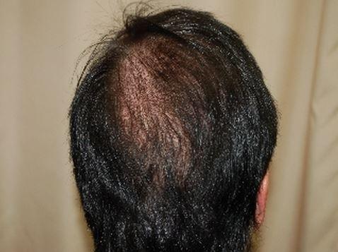 השתלת שיער לגברים - אחרי השתלה מקדימה