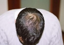 השתלת שיער לגברים - אחרי השתלה בפדחת