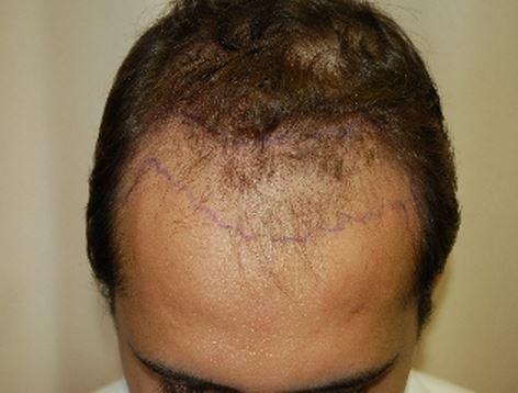 השתלת שיער לגברים -לפני השתלה מקדימה