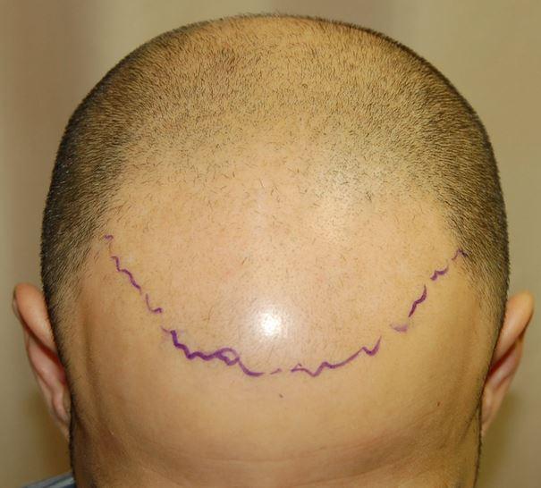 השתלת שיער לגברים - לפני השתלת 5000 שערות בשיטת FUE