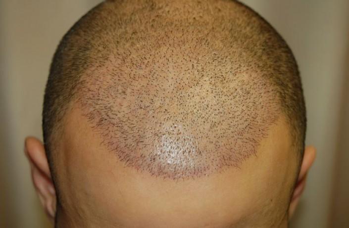 השתלת שיער לגברים - שבוע לאחר השתלת 5000 שערות בשיטת FUE