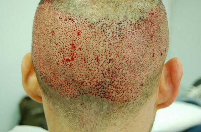 השתלת שיער לגברים - מיד לאחר הוצאת 5000 שערות בשיטת FUE