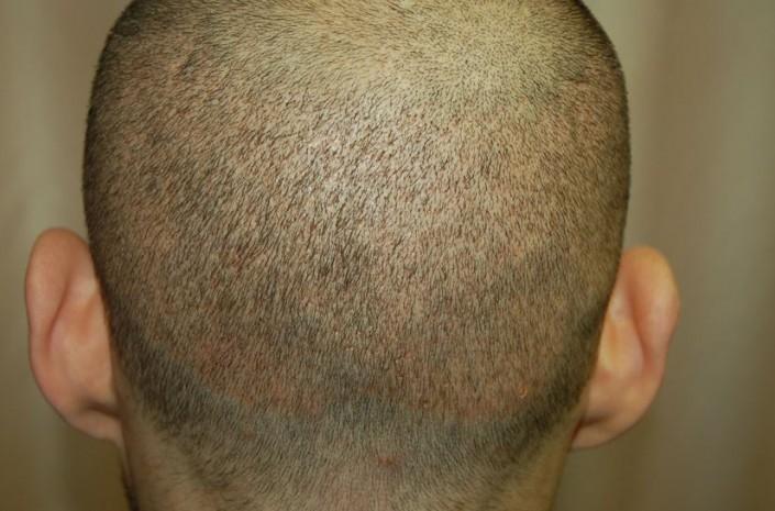 השתלת שיער לגברים - שבוע לאחר הוצאת 5000 שערות בשיטת FUE
