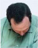 לאחר השתלת שיער