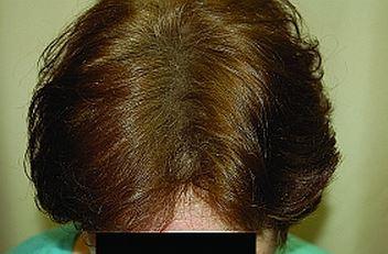 לאחר השימוש בטופיק נשירת שיער שיער דליל