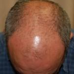 השתלת שיער- תמונות לפני ואחרי