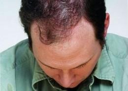 לפני השימוש בטופיק נשירת שיער שיער דליל