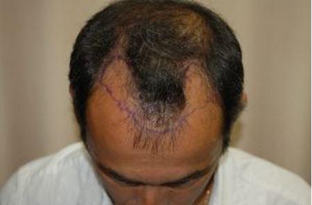השתלת שיער לגברים - לפני ההשתלה