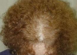 לפני השימוש במינוקסידיל נשירת שיער