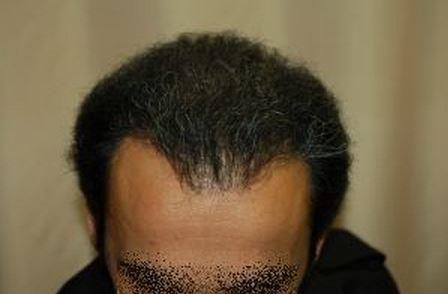 השתלת שיער לגברים - אחרי ההשתלה