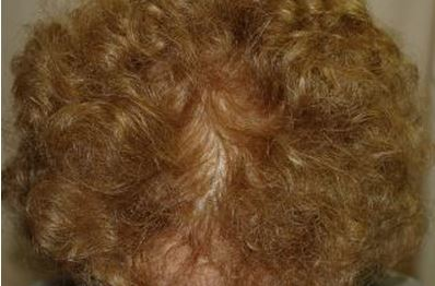 לאחר השימוש במינוקסידיל נשירת שיער
