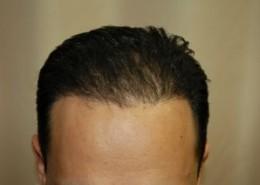 השתלת שיער לגברים - אחרי