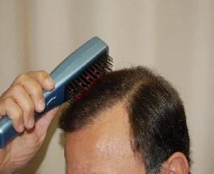 טיפול בנשירת שיער באמצעות מכשיר לייזר - מסרק לייזר